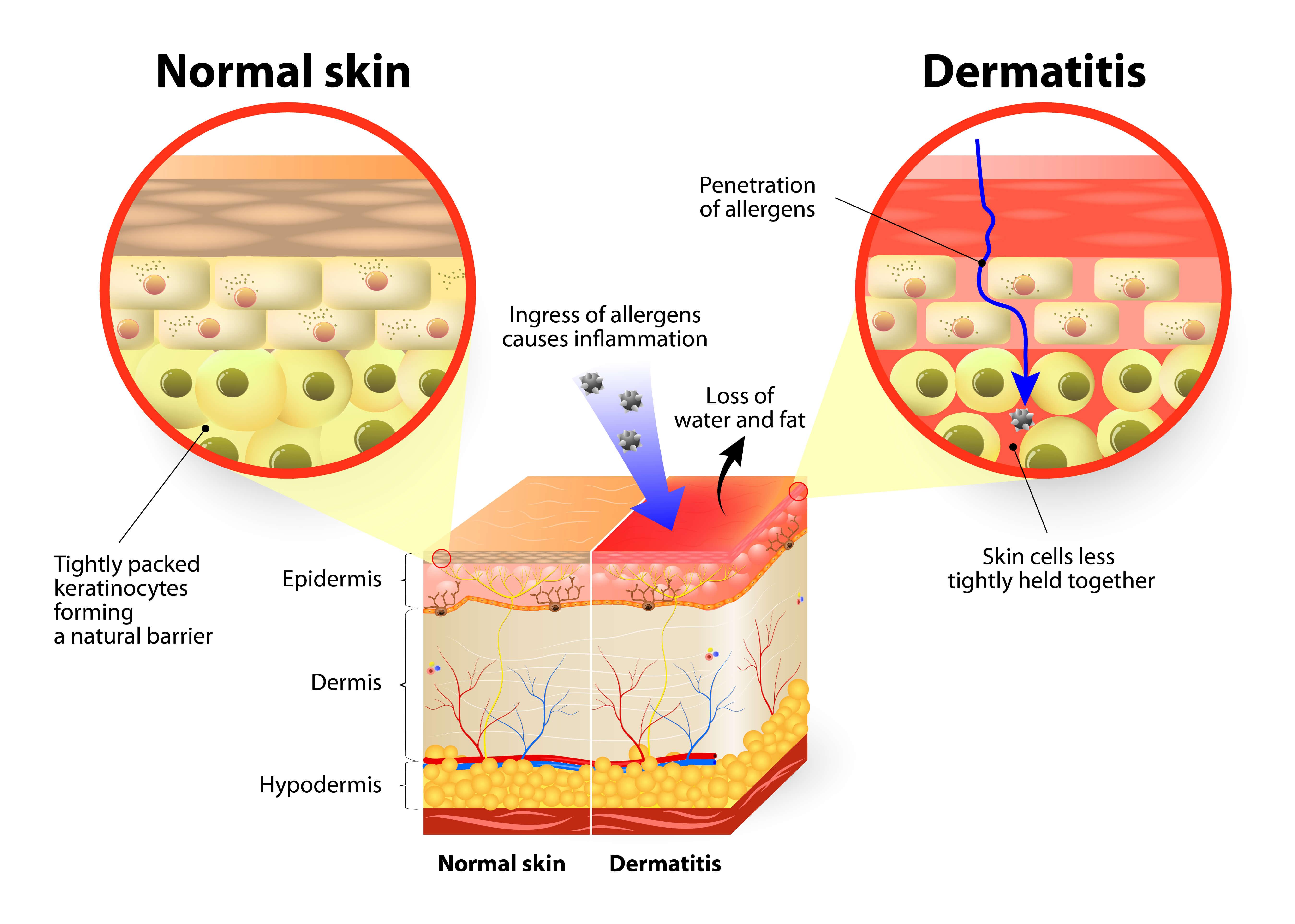 eczema graphics
