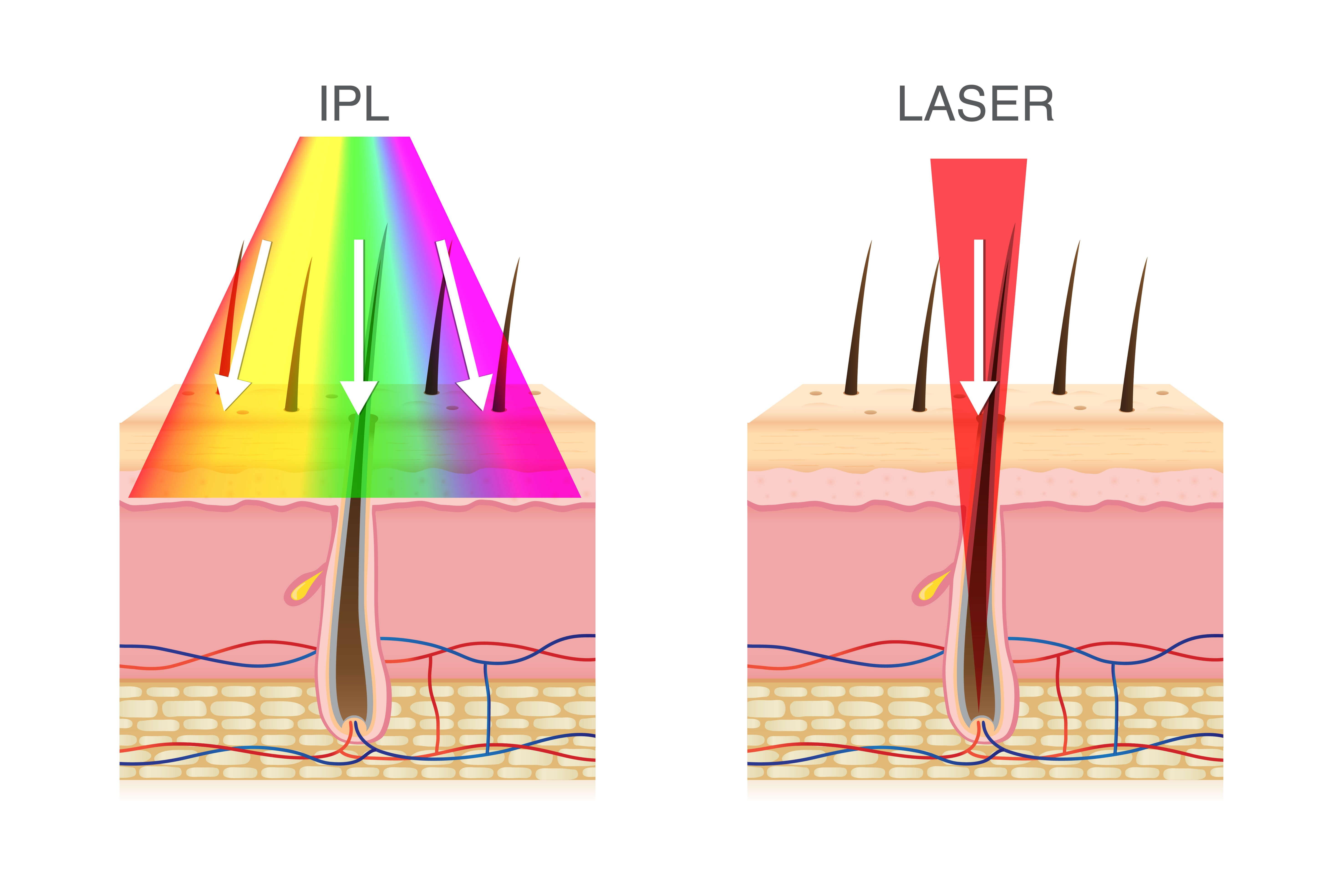 Illustration of IPL versus laser treatment