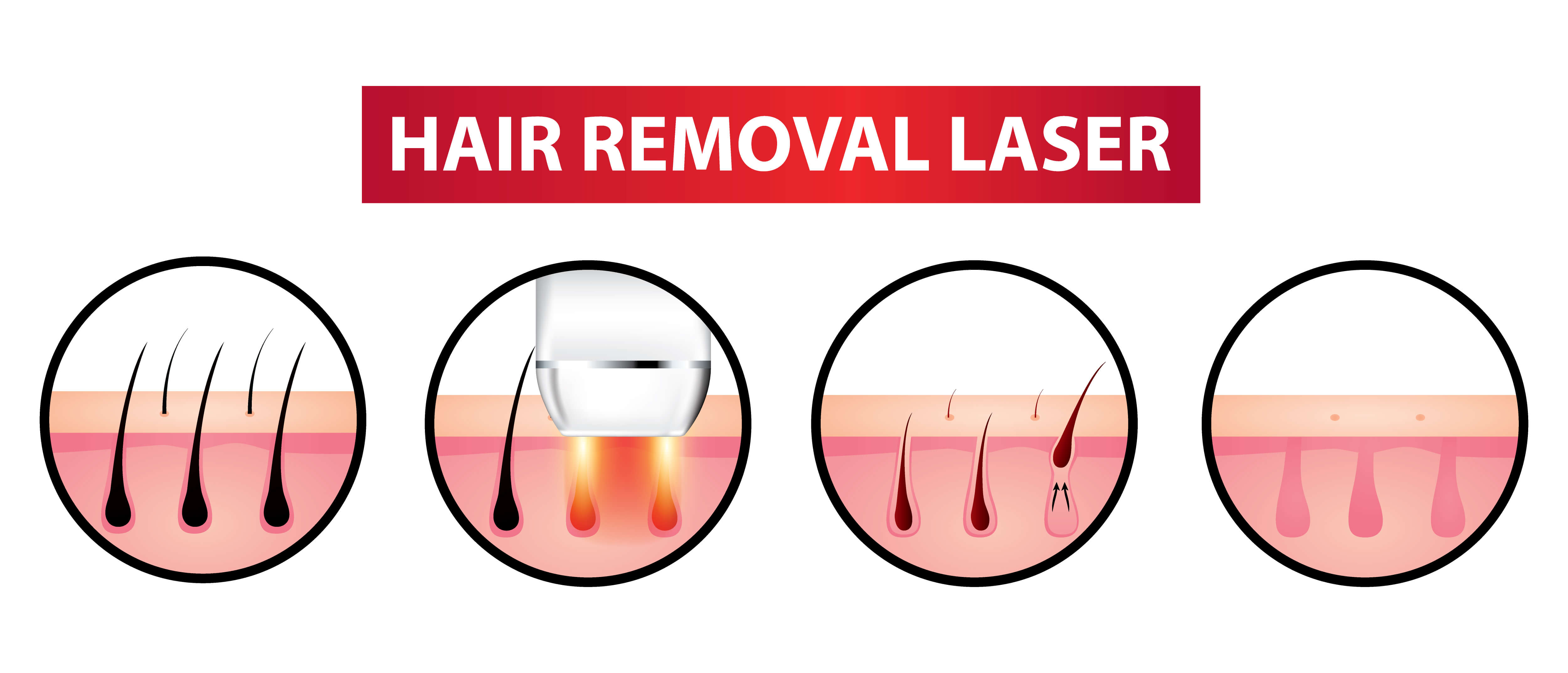 Infographic on hair removal laser treatment