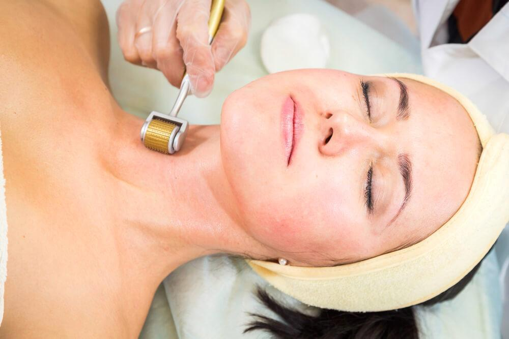Woman enjoying a micro needling treatment session