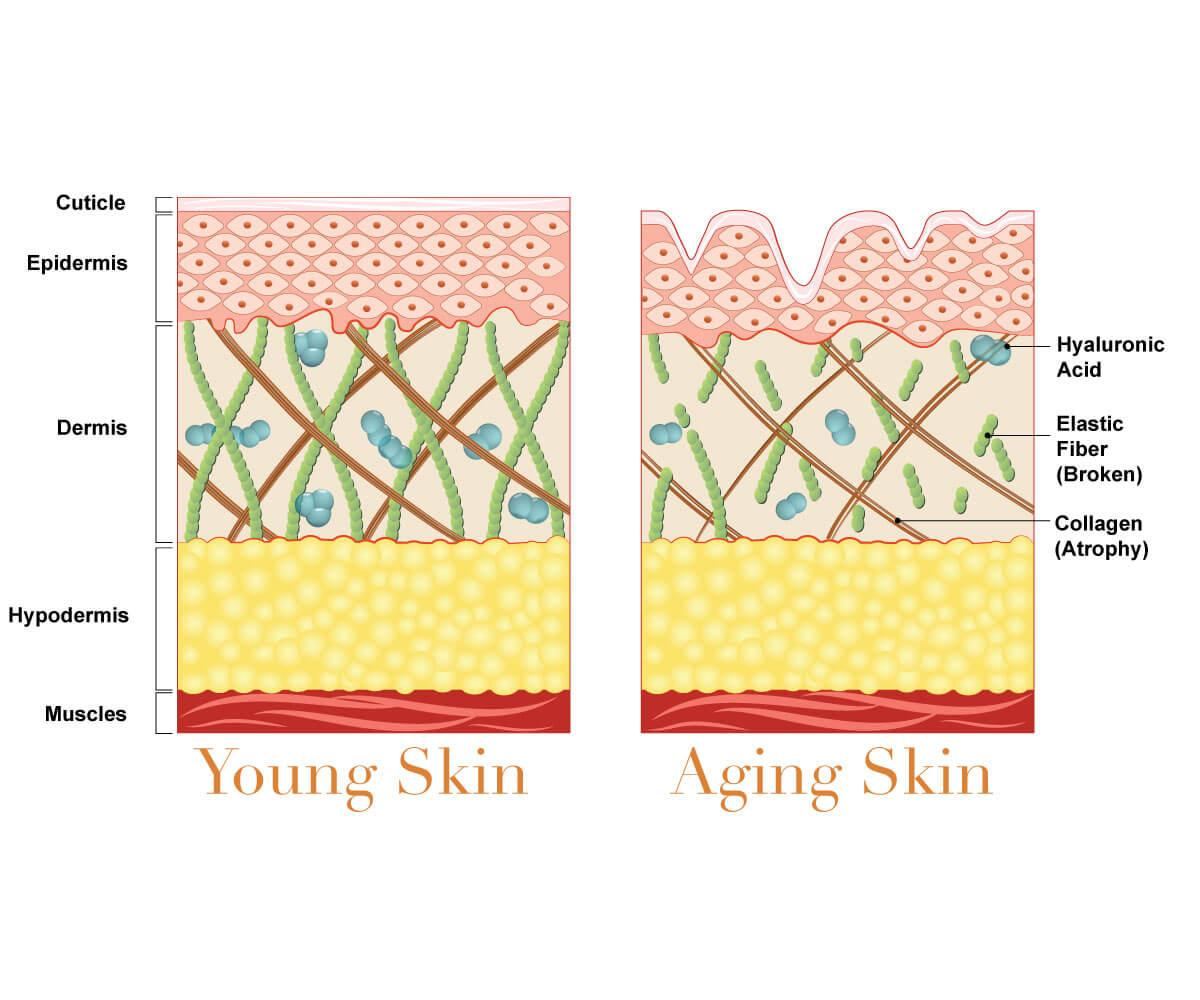 Infographic on skin layers