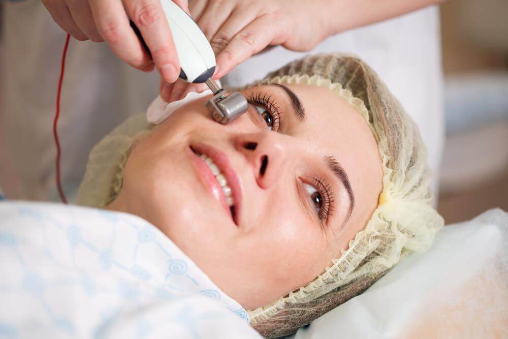 Woman undergoing microneedling procedure