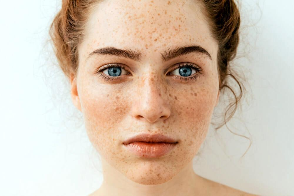 Closeup of woman with dark spots on cheeks and notse
