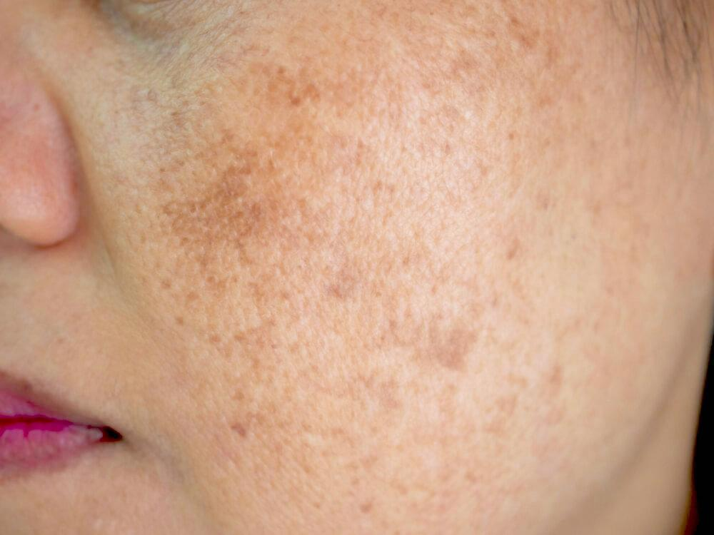 Close-up of woman's face with melasma