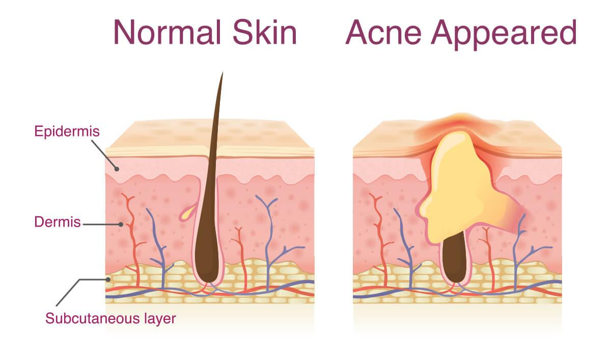 Infographic showing how acne appears