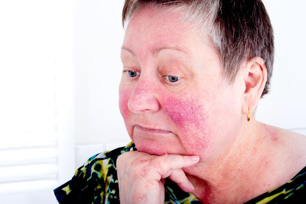 woman with rosacea
