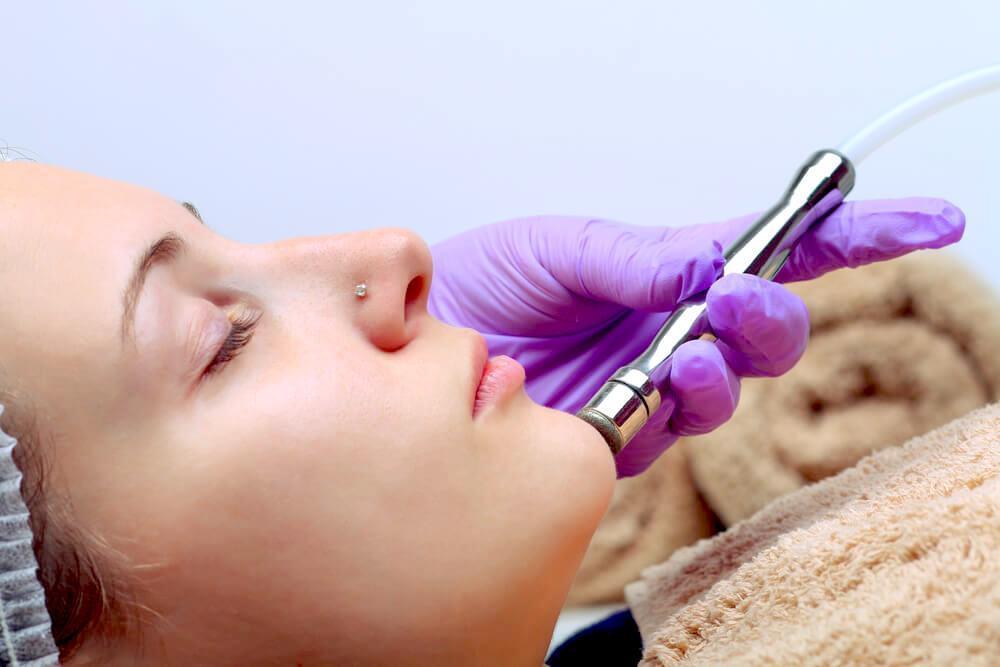 dermabrasion procedure
