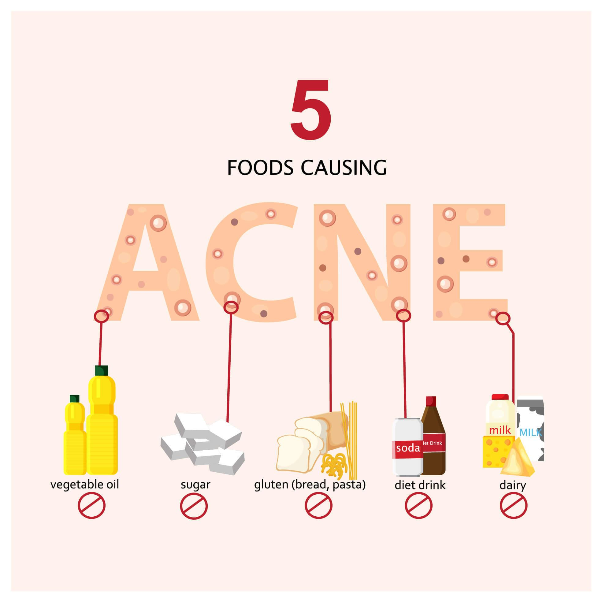 Illustration of 5 food causes of acne