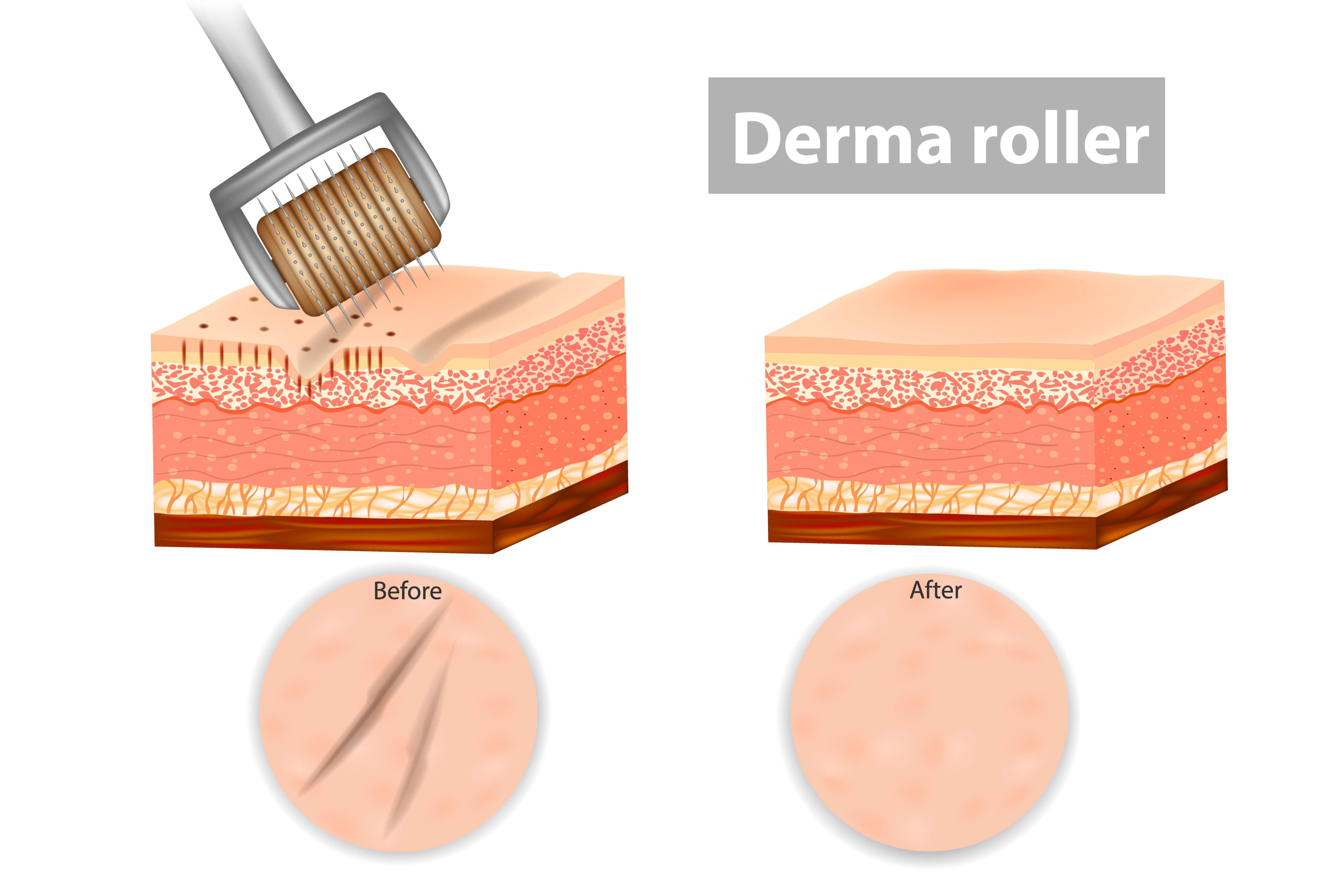 Illustration of the effect of micro needling on the skin