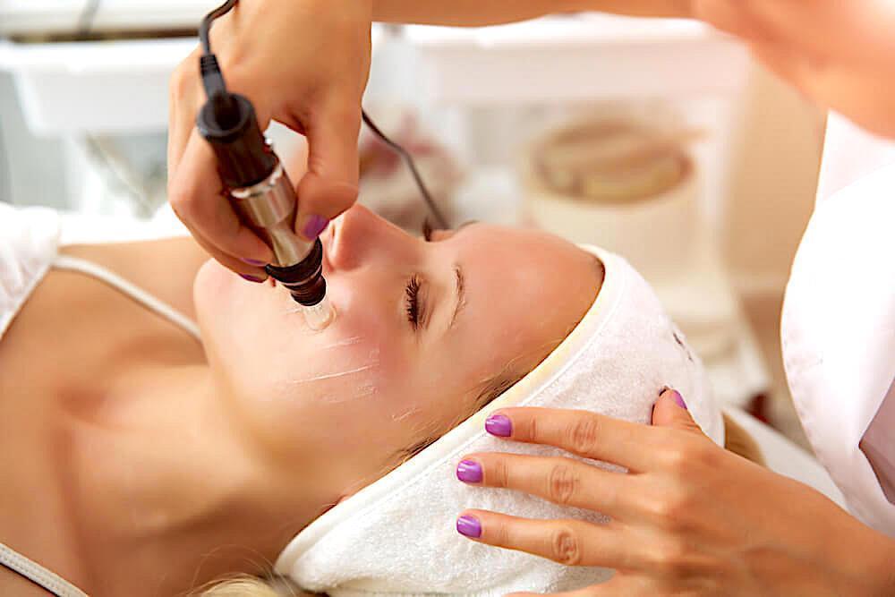 Woman undergoing micro needling procedure