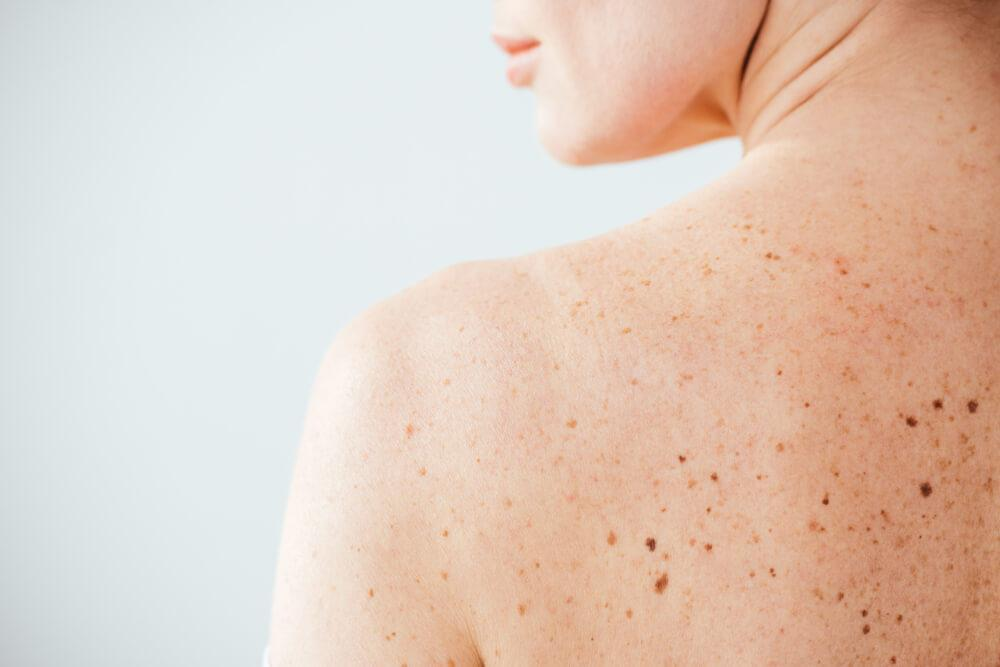 Woman's back with freckles and pigmentation