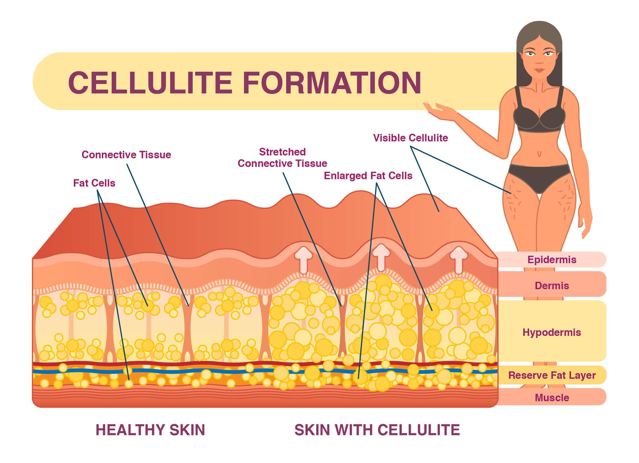 Cellulite infographic